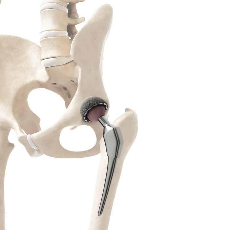 Artificial hip joint on a skeleton