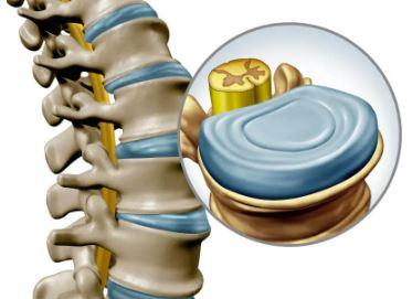 Intervertebral disc in the spine