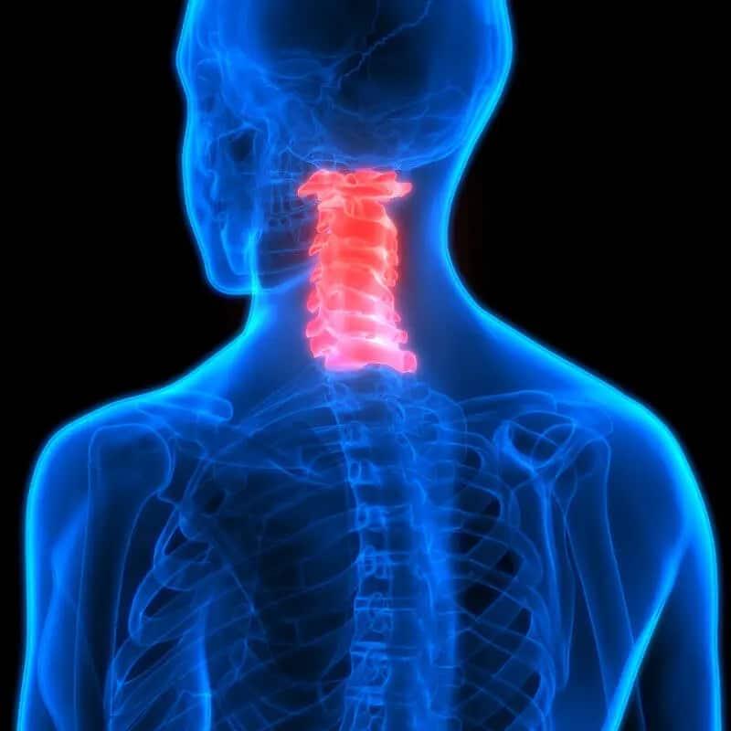 back pain - cervical spine