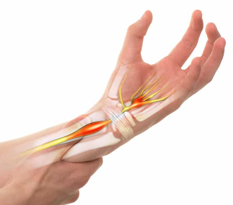 Illustration of carpal tunnel syndrome.
