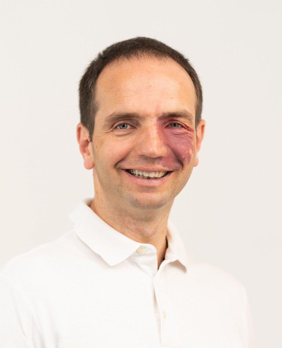 Der Heilpraktier Manfred Wyskocil von der Insel Rügen steht vor einem weißen Hintergrund. Er trägt ein weißes Polo T-Shirt und hat kurze braune Haare.