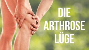 """Zwei Hände halten sich vor Schmerzen das rechte Knie. Rechts daneben steht in Großbuchstaben """"DIE ARTHROSE LÜGE"""""""