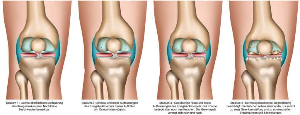 Arthrose im Kniegelenk verursacht Knieschmerzen