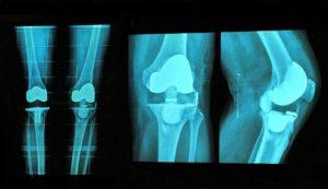 Ein künstliches Kniegelenk behebt die Knieschmerzen oft nicht