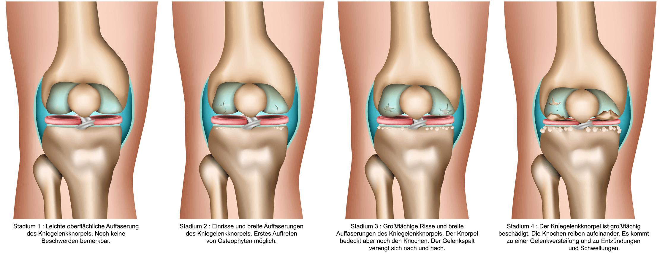 Der Arthrose-Verlauf in vier Stadien wird anhand von vier Modellen dargestellt. Jedes Stadium wird beschrieben.