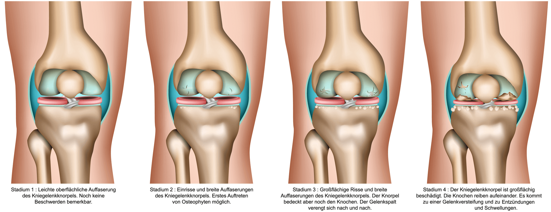 Arthrose behandeln: Welche Therapien gegen Knieschmerzen helfen