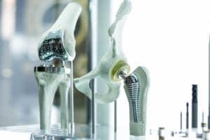 Zwei künstliche, in ein Knochenmodell eingebaute, Gelenke. Im Hintergrund sind Werkzeuge zu sehen.