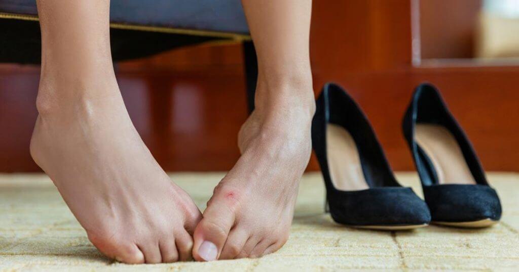 Schmerzende Füße mit Hallux valgus und Hammerzehen neben hohen Schuhen