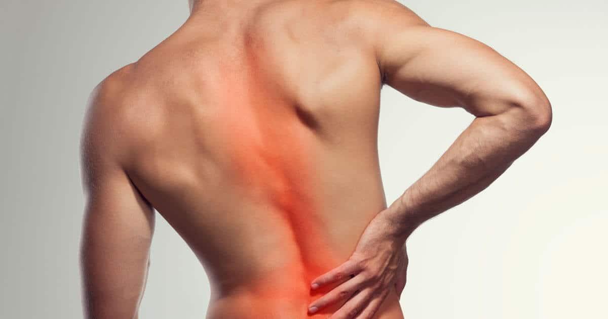 Rücken eines Mannes, der unter Skoliose leidet