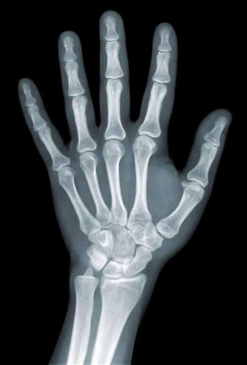 Röntgenaufnahme einer Hand.