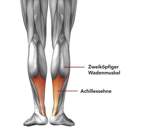 Grafische Darstellung von Zwillingswadenmuskel und Achillessehne zum Verständnis von Wadenschmerzen