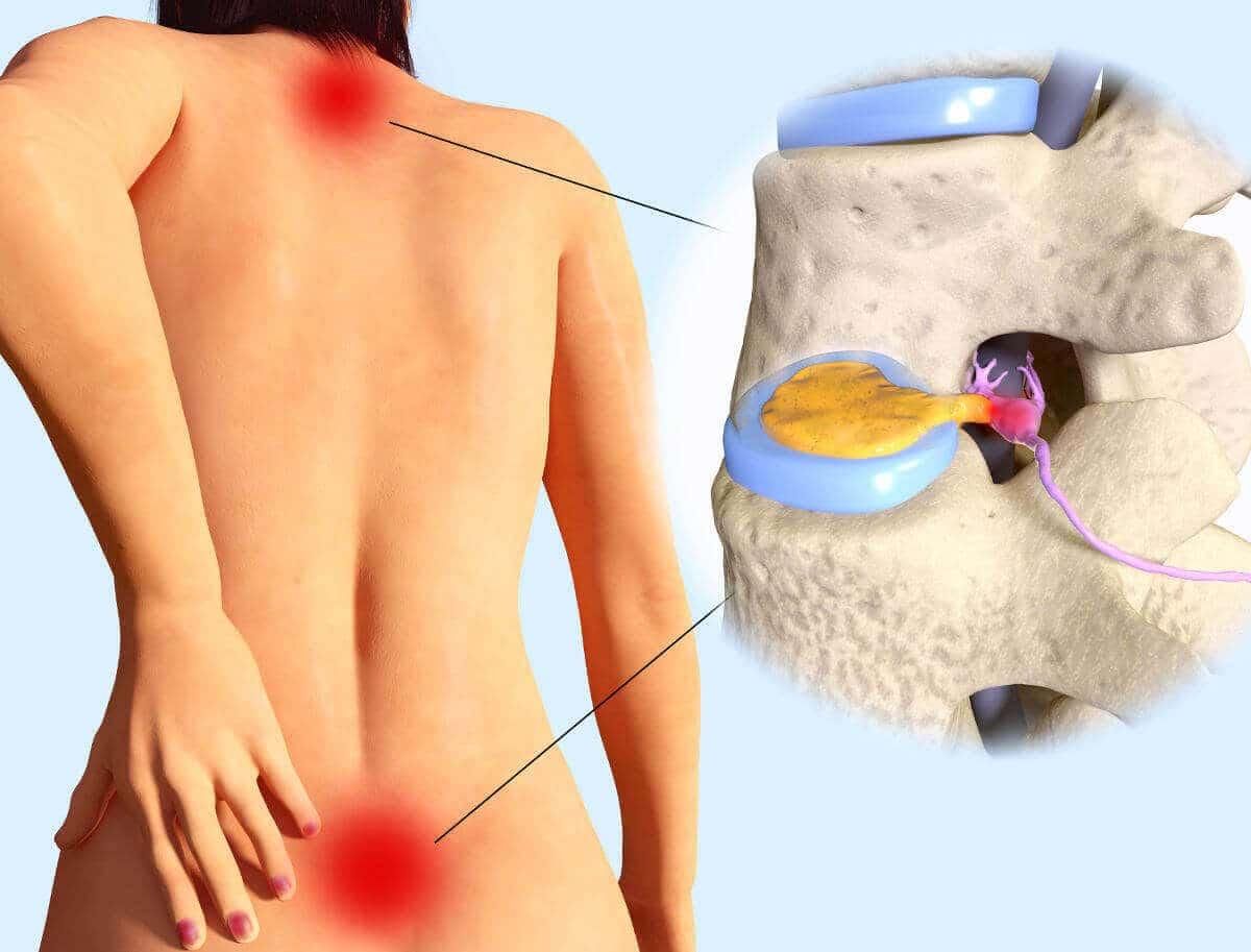 Auf dem Rücken einer Frau sind HWS und LWS mir roten Schmerzpunkten markiert, daneben ist ein Wirbelkörper abgebildet, in dem sich ein Bandscheibenvorfall ereignet hat