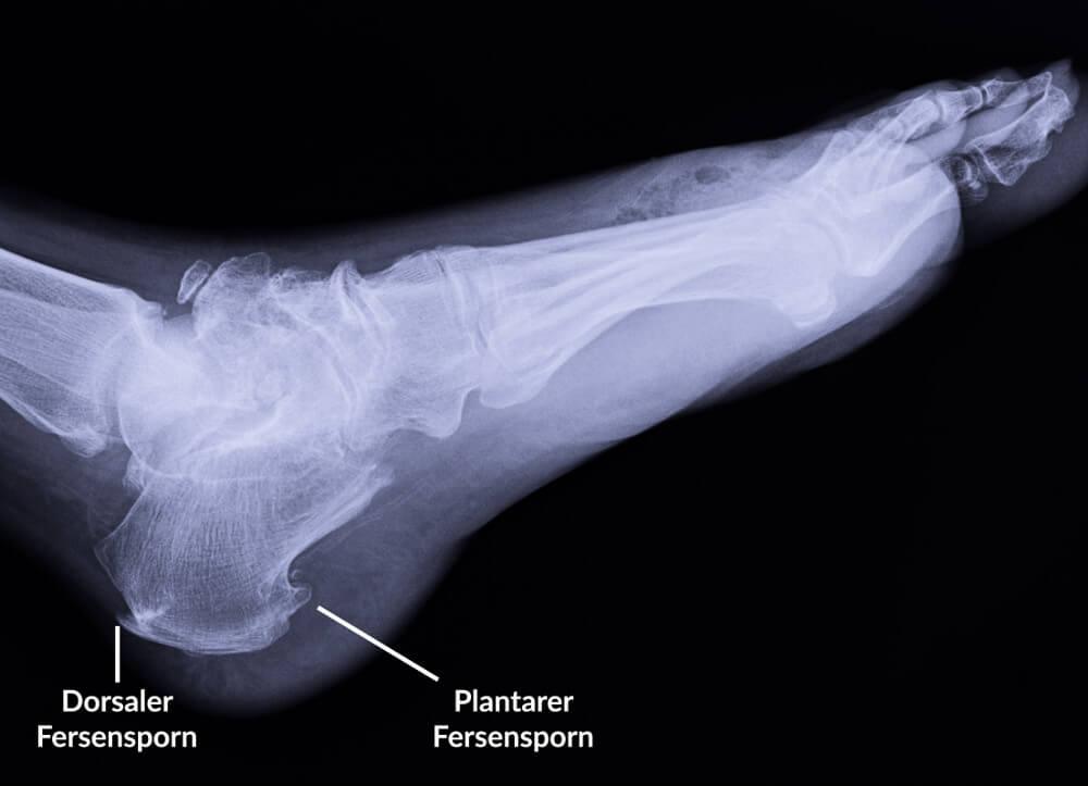 Röntgenbild mit dorsalem und plantarem Fersensporn