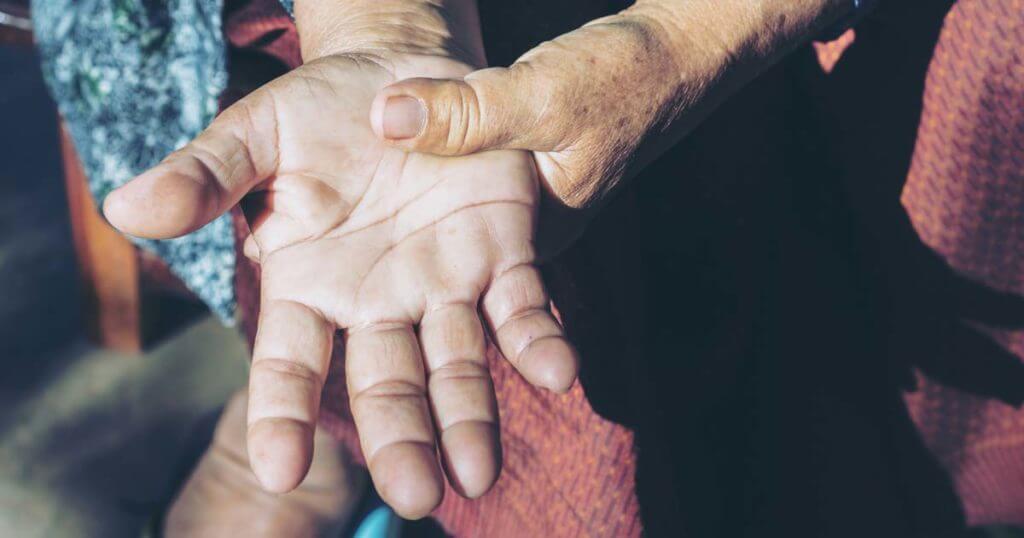 Finger-Arthrose bei einer alten Frau
