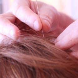 Eine Akupunkturnadel wird in die Kopfhaut gesteckt