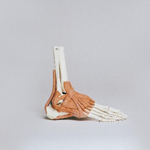 Anatomisches Modell von einem Fuß zur Verdeutlichung eines Spreizfußes.