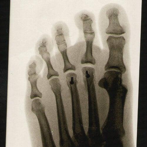 Röntgenaufnahme von Fuß