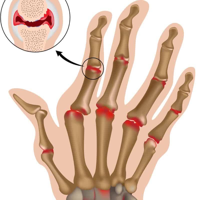 Grafik einer Hand mit rot eingezeichneten Fingergelenken zur Verdeutlichung des Auftretens von Rheuma