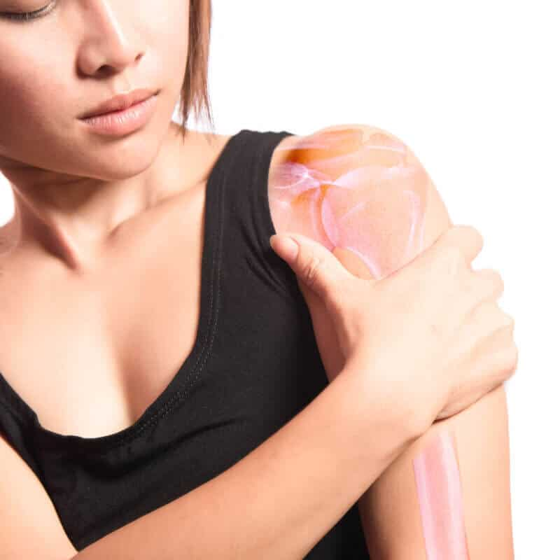 """Eine junge Frau hält sich ihre Schulter, die grafisch als entzündet und """"vereist"""" dargestellt ist"""