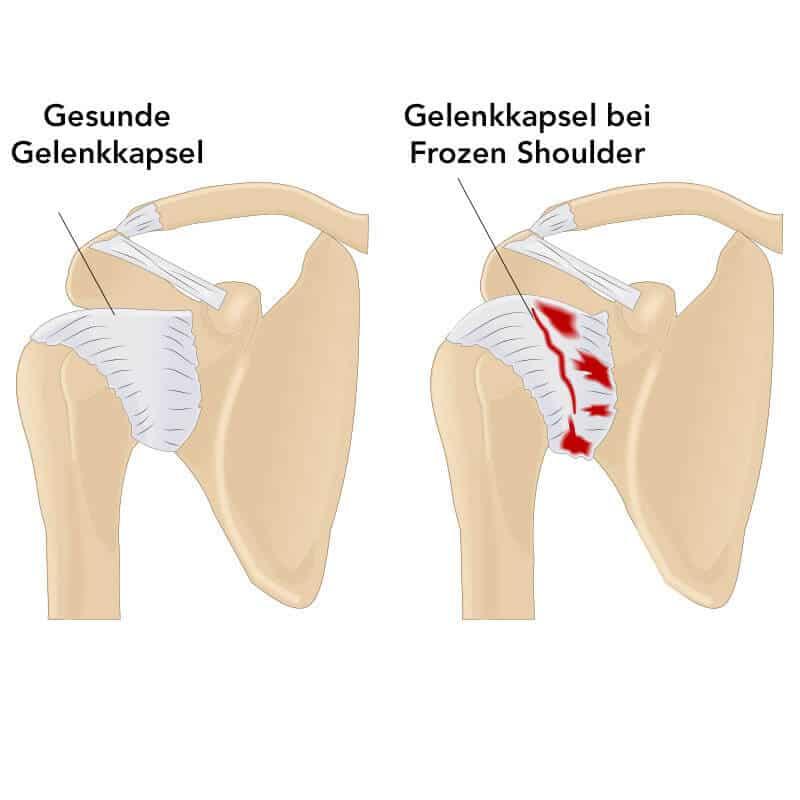 Grafisch abgebildet ist ein gesundes Schultergelenk und ein von der Frozen Shoulder betroffenes Gelenk mit eingezeichneter Entzündung und Versteifung der Kapsel
