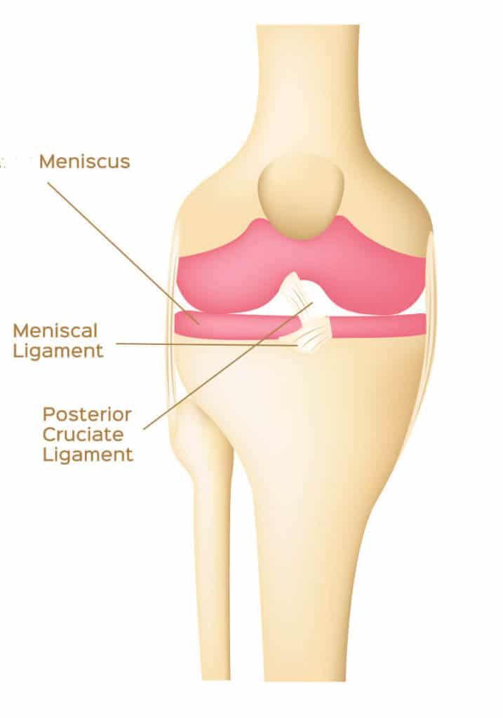 Anatomische Darstellung vom hinteren Kreuzband im Knie