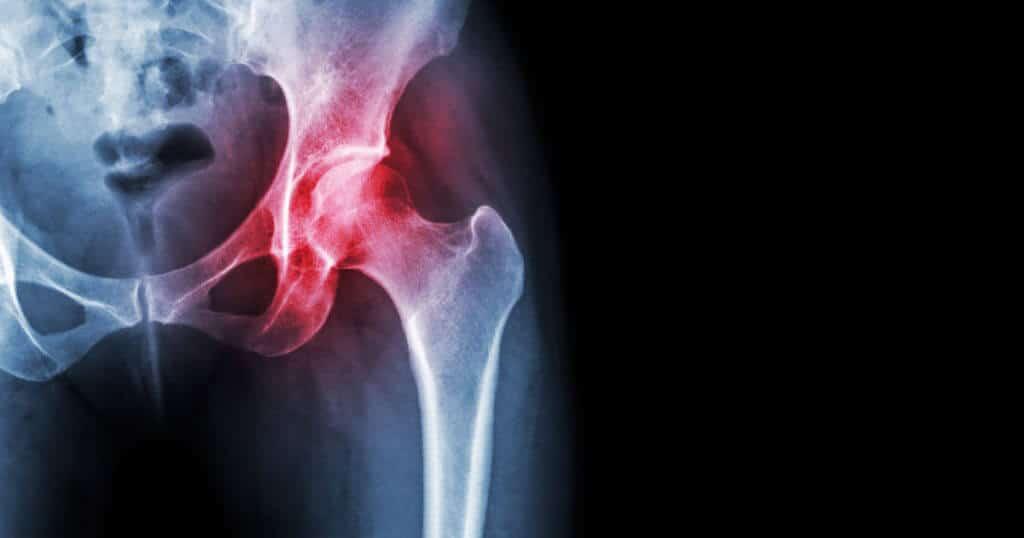 Anatomiebild der Hüfte mit rot unterlegtem Bereich der Schmerzbereiche