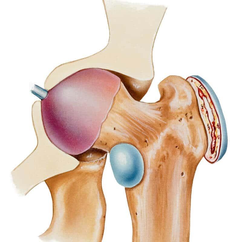 Anatomische Darstellung des Schleimbeutels am Hüftgelenk