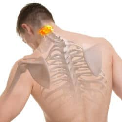Mann mit eingezeichnetem Skelett und Atlaswirbel auf dem Rücken
