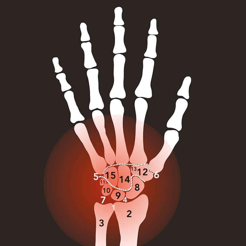 Entzündung im Handgelenk
