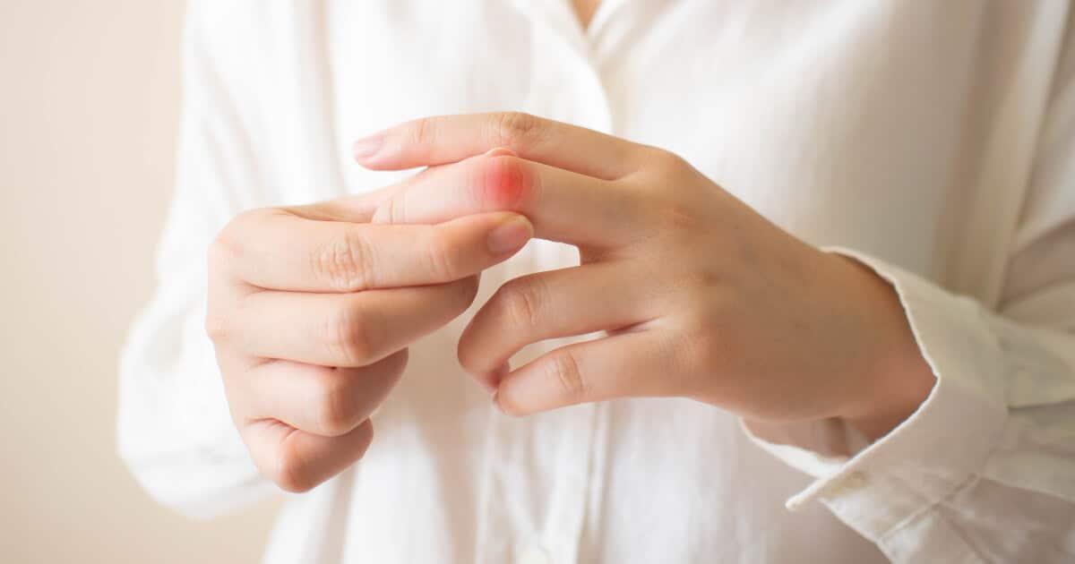 Eine Frau greift sich an den schmerzenden Mittelfinger.