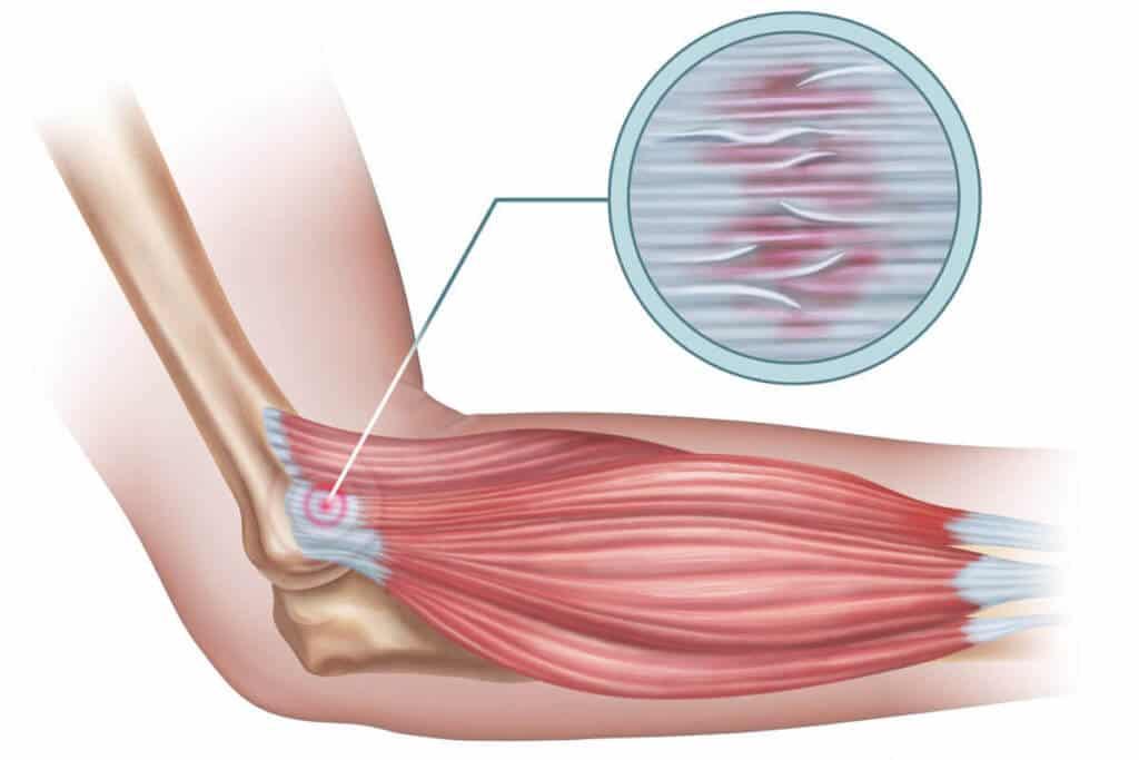 Eine Grafik verdeutlicht Mikrorisse und Verdickungen, die am Sehnenansatz der Streckmuskeln des Unterarms einen Tennisellenbogen auslösen