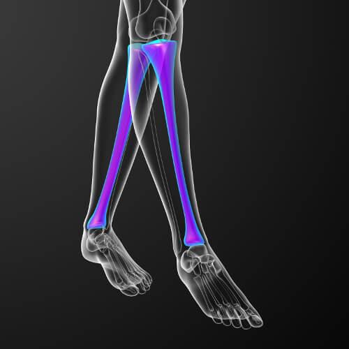 Eingefärbter Tibia bei Schienbeinschmerzen zu erkennen