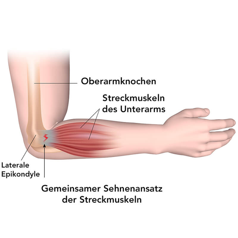 Zu sehen ist eine Grafik des Ellenbogens und Unterarms, auf dem die Streckmuskeln zu sehen sind sowie ihr gemeinsamer Sehnenansatz am Ellenbogen, der bei einem Tennisarm überreizt bzw. verletzt wird