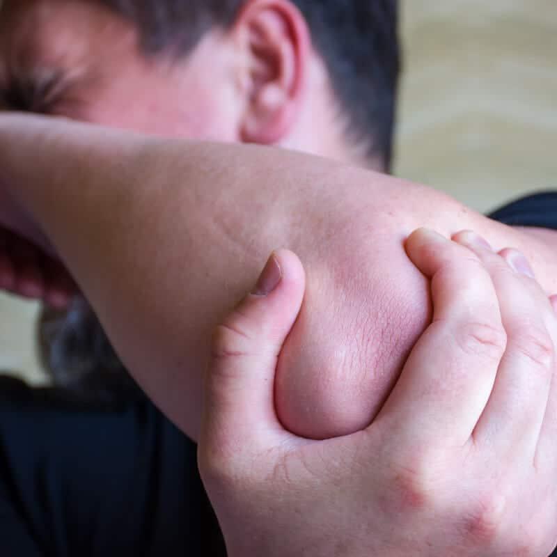 Tennisarm Behandlung – 7 Tipps für einen schmerzfreien Ellenbogen