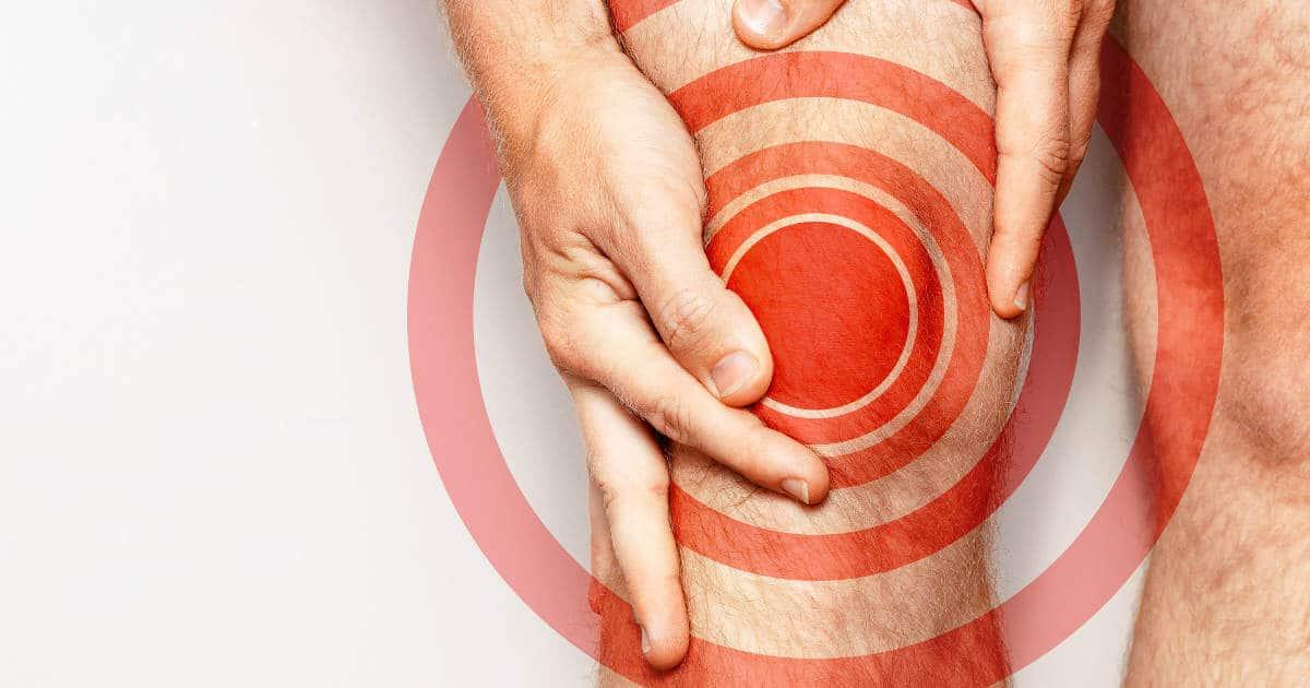 Mann mit Knieschmerzen, die durch rote Kreise symbolisiert werden. Kniegelenksarthrose verursacht Schmerzen im Knie