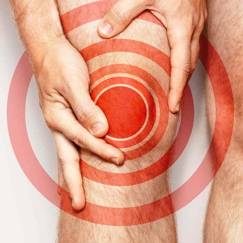 Bein eines Mannes mit Knieschmerzen, die durch rote Kreise symbolisiert werden. Kniegelenksarthrose ist eine häufige Begleiterscheinung bei Hypermobilität und verursacht Schmerzen im Knie