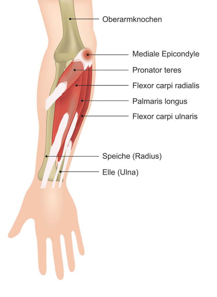 Die Grafik erklärt die streckseitige Unterarmmuskulatur und ihren gereizten gemeinsamen Sehnenansatz (mediale Epicondyle) bei einem Golferellenbogen anhand der Fachbegriffe