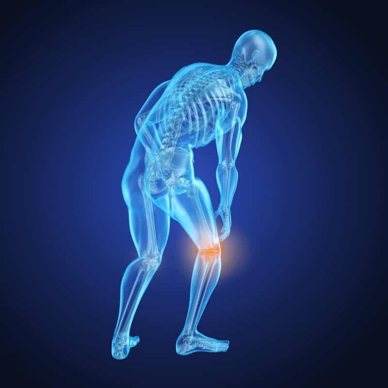 Blaugefärbte 3D-Figur hält sich mit einer Hand das rotgefärbte Knie aufgrund von Meniskus-Schmerzen