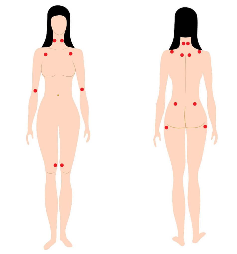 Tender Points an verschiedenen Stellen am Körper zur Diagnose einer Fibromyalgie