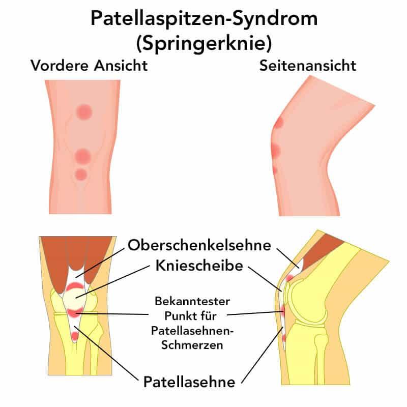 Zwei Ansichten auf die Anatomie des Knies zur Entstehung von Patellasehnen-Schmerzen
