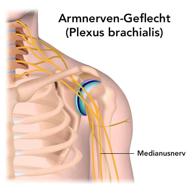 Grafische Darstellung des Armnervengeflechts Plexus brachialis, aus dem der Medianusnerv entspringt, der bei einem Karpaltunnelsyndrom ein Kribbeln in den Händen hervorrufen kann.