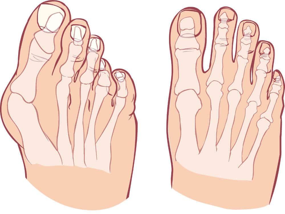 Zu sehen ist eine schematische Abbildung eines Fußen mit und ohne Hallux valgus.