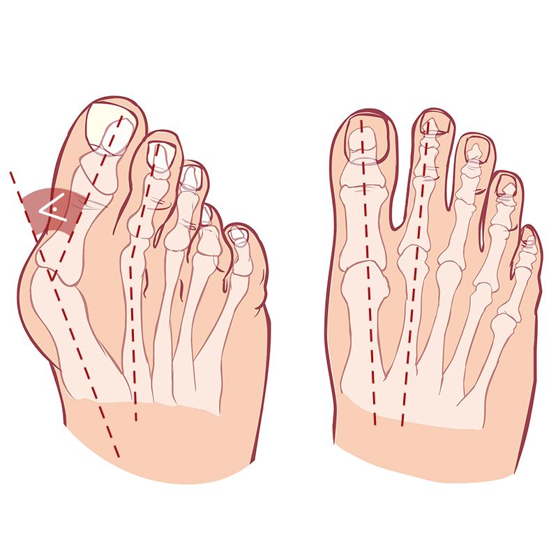 Zu sehen ist eine schematische Abbildung eines Fußes mit und ohne Hallux valgus. Beim Fuß mit Hallux valgus ist der Winkel eingezeichnet, der bestimmt, wie ausgeprägt die Deformierung ist.