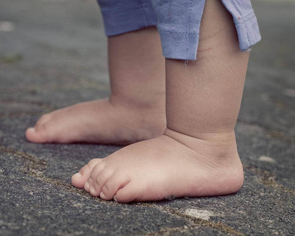 Kind steht barfuß auf dem Boden. Bereits 36 Prozent der Kinder bekommen einen Hallux valgus.