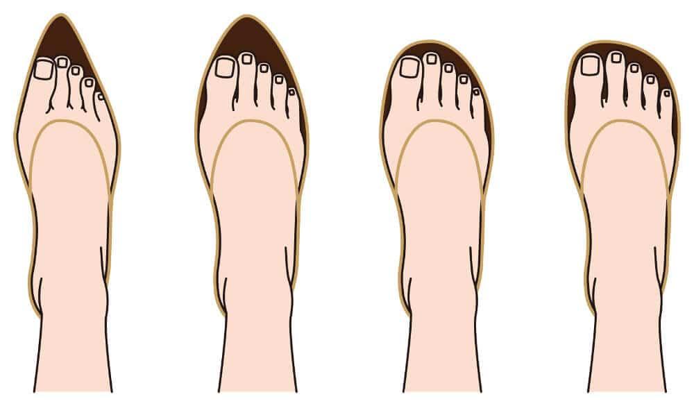Zu sehen sind schematische Darstellungen unterschiedlich breite Schuhe. Schmales Schuhwerk fördert die Fehlstellung beim Hallux valgus.