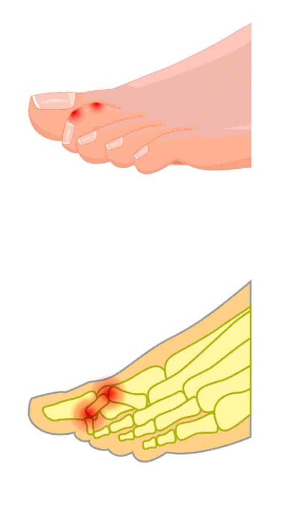 Schematische Darstellung einer Krallenzehe. Die Krallenzehe verliert dauerhaft den Kontakt zum Boden, da Mittel- und Endgelenk der Zehen sich zusammenziehen und nach oben zeigen.