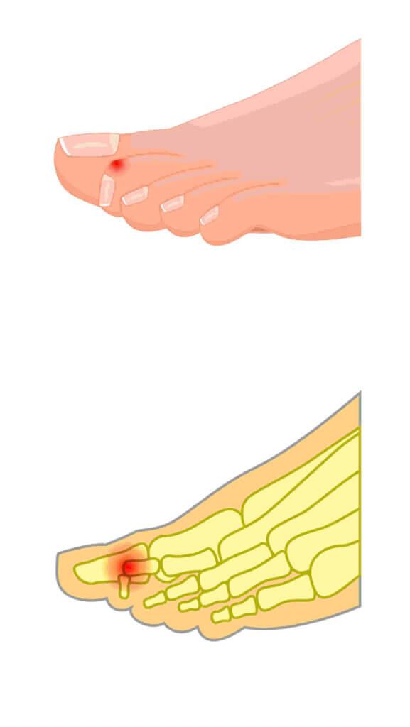 Zu sehen ist ein Fuß mit Malletzehe. Dabei steht das Endgelenk des Zehs nach oben. Die Zehenkuppe bohrt sich in den Boden.
