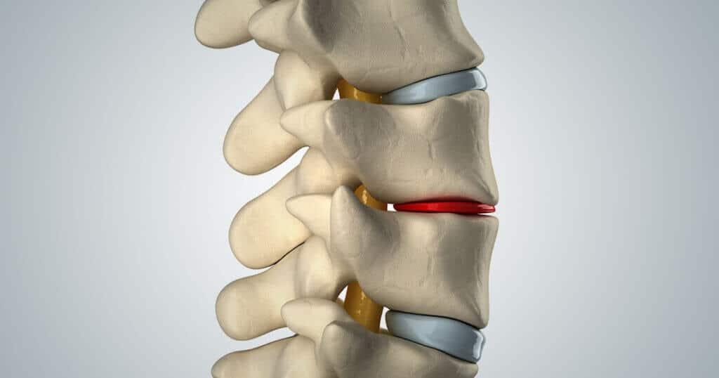 Eine anatomische Darstellung der Wirbelsaeule. Eine Bandscheibe liegt ganz duenn zwischen den Wirbeln.
