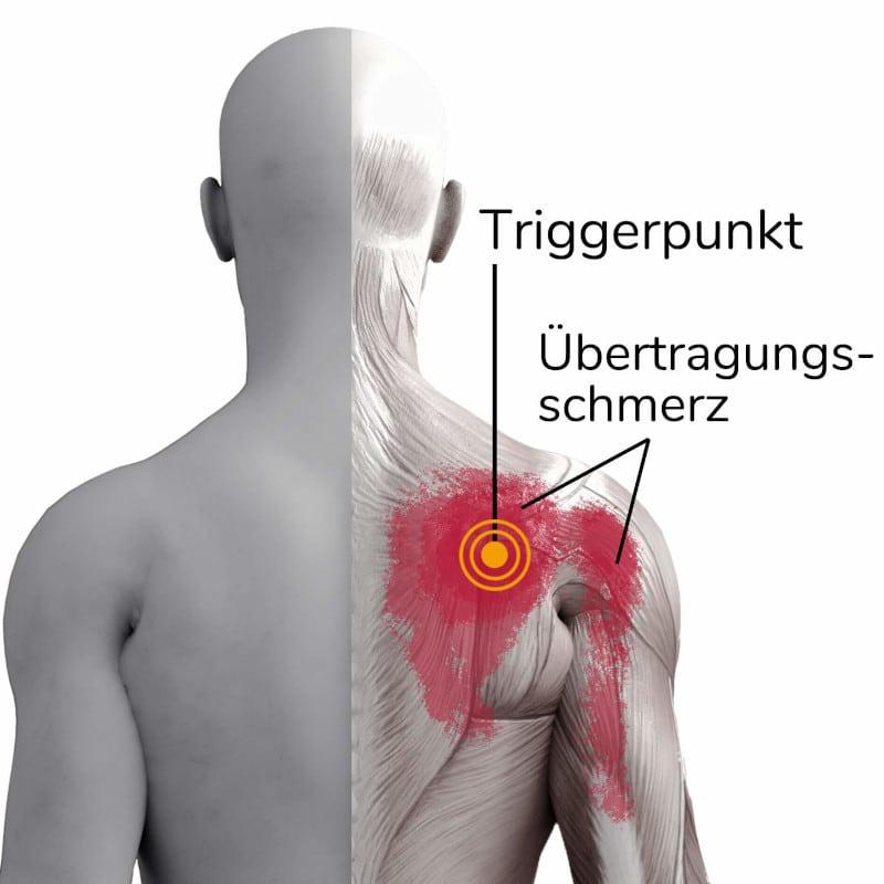 Muskel oberarm knubbel am Muskel Knubbel
