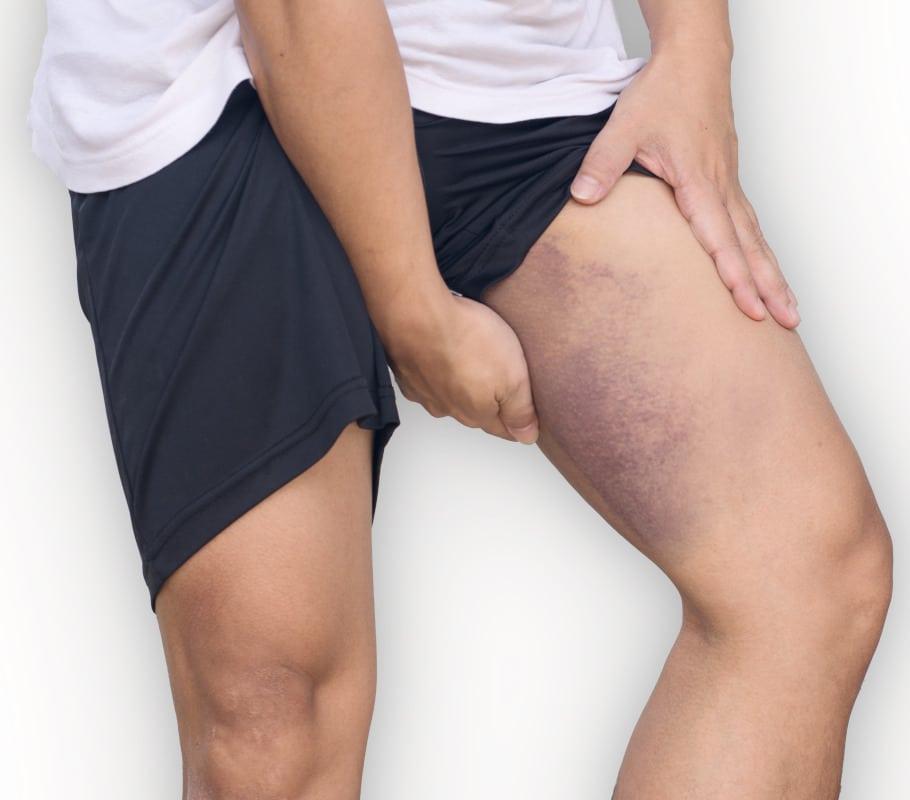 Oberschenkel mann ursache dicke Geschwollene Beine: